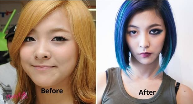 Luna Before And After Plastic Surgery 1