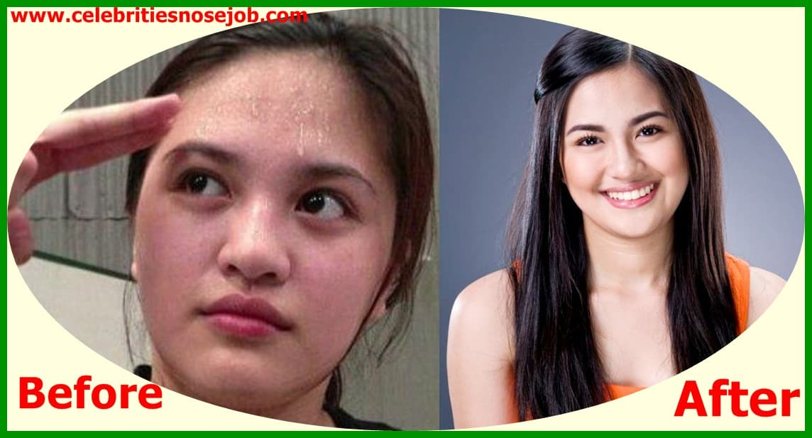 Filipino Plastic Surgery Before After 1