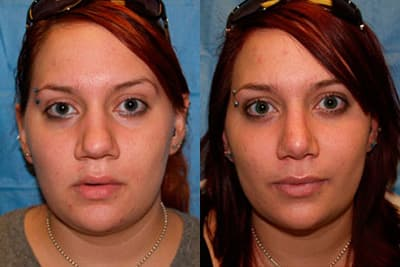 Triangle Plastic Surgery Before After 1