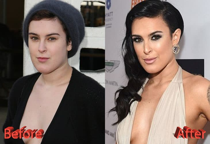 Before And After Plastic Surgery Lara 1