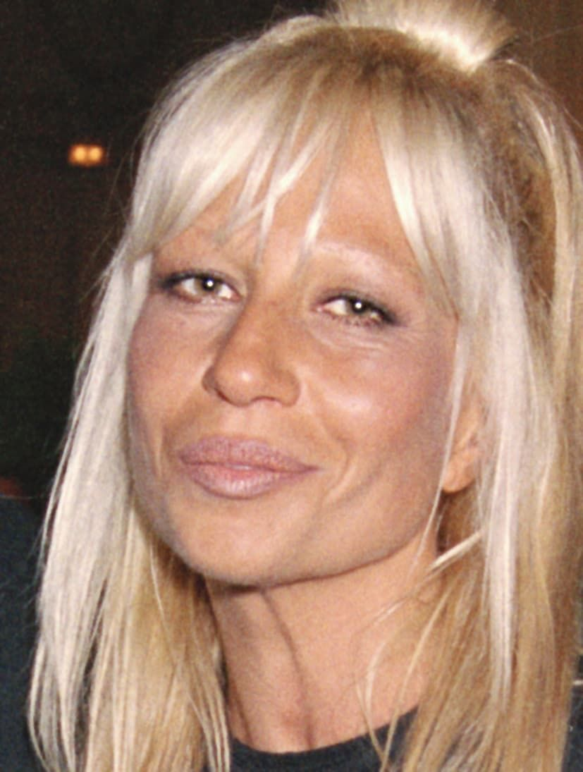 Donata Versace Before Plastic Surgery 1