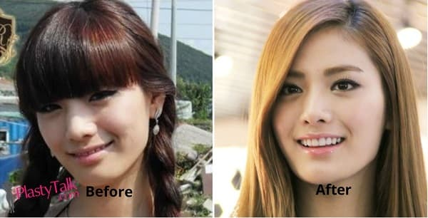 Nana Before And After Plastic Surgery 1
