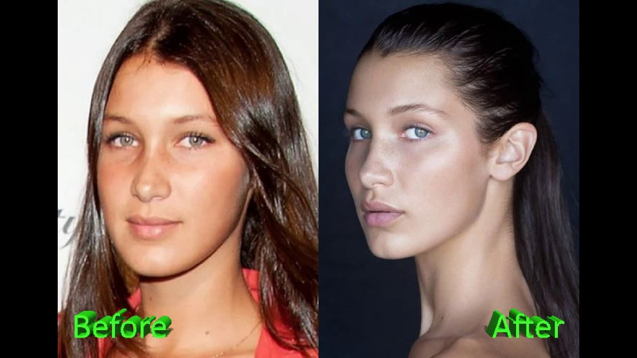 Plastic Surgery Before And After Free 1