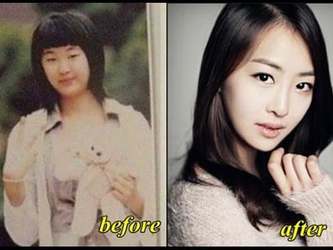 Yura Before And After Plastic Surgery 1