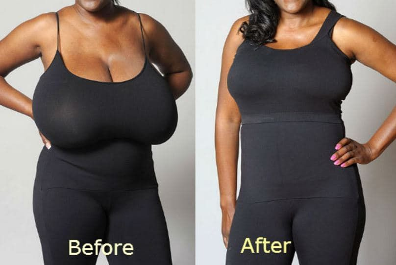 plastic surgery breast reduction cost 1