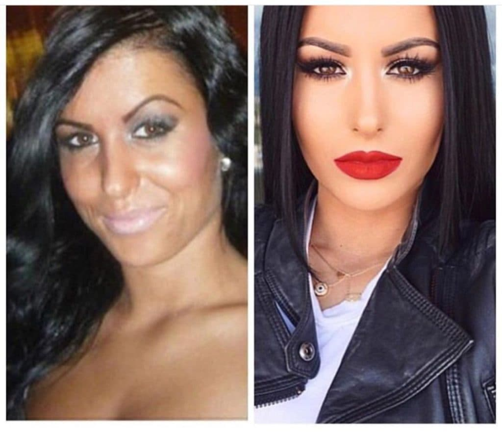 Amrezy Before And After Plastic Surgery
