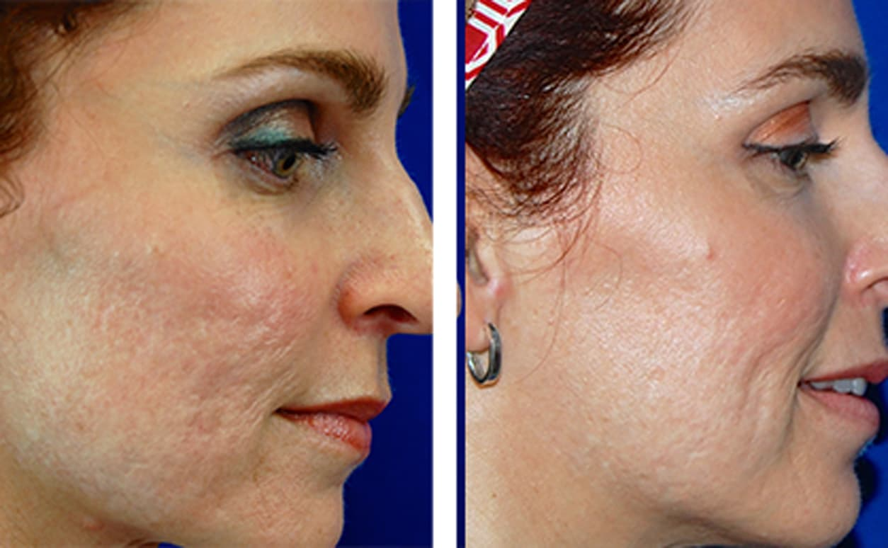 Acne Scar Plastic Surgery Before And After photo - 1