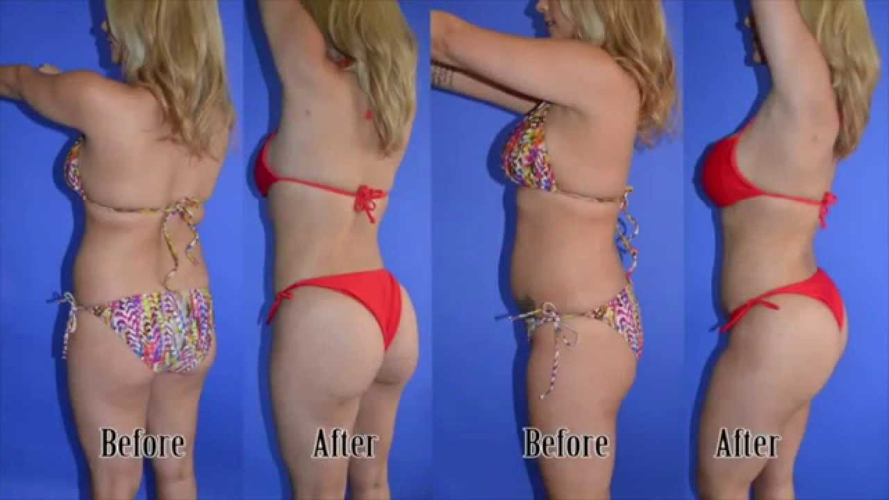 Beautiful Plastic Surgery Before And After photo - 1