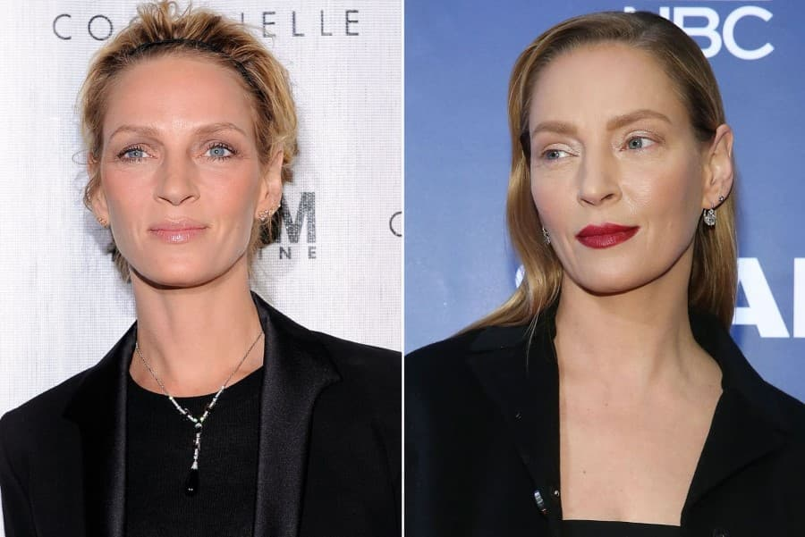 Carrie Fisher Plastic Surgery Before After photo - 1