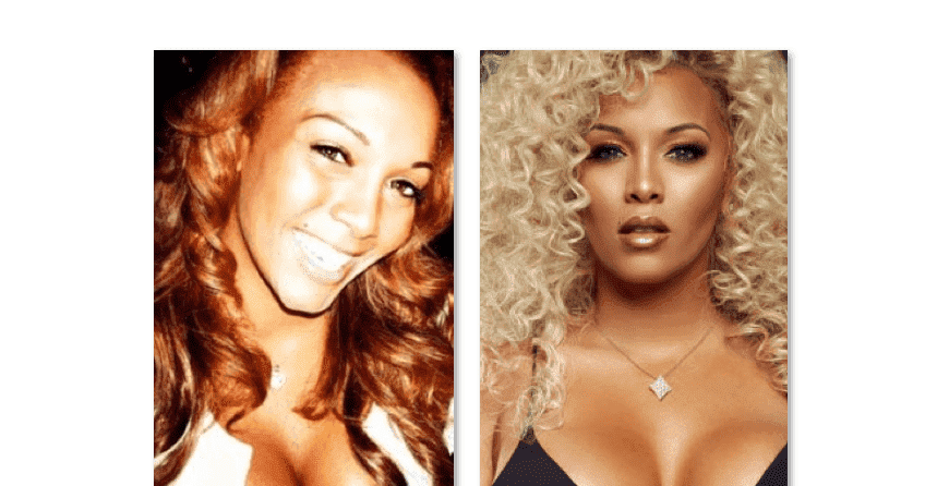 Kimbella Before And After Plastic Surgery photo - 1