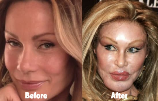 Lion Lady Plastic Surgery Before And After photo - 1