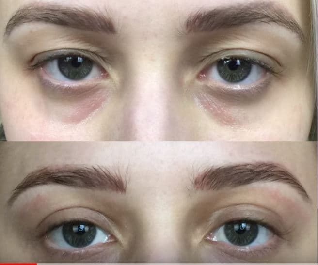 Plastic Surgery Melbourne Before And After photo - 1