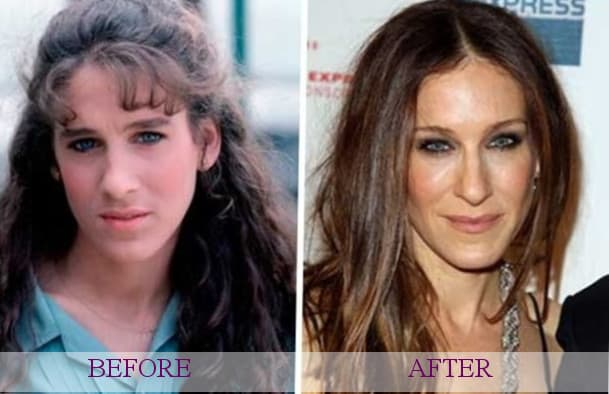 Celebrity Plastic Surgery Before After 1