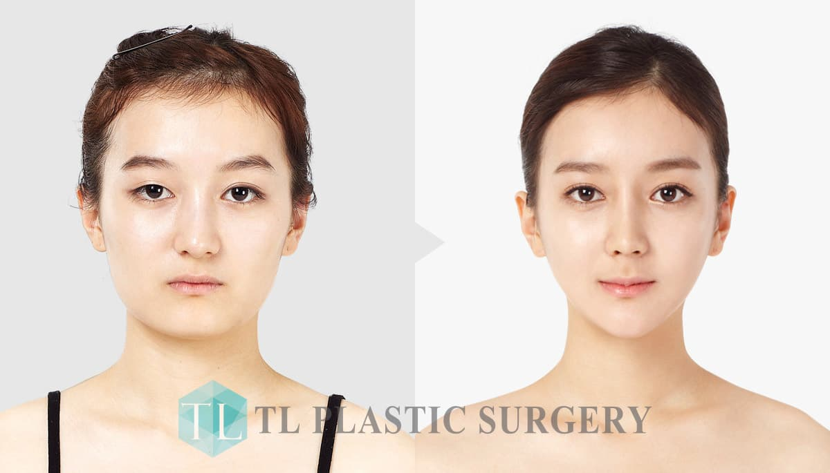 Cheekbone Plastic Surgery Before After 1