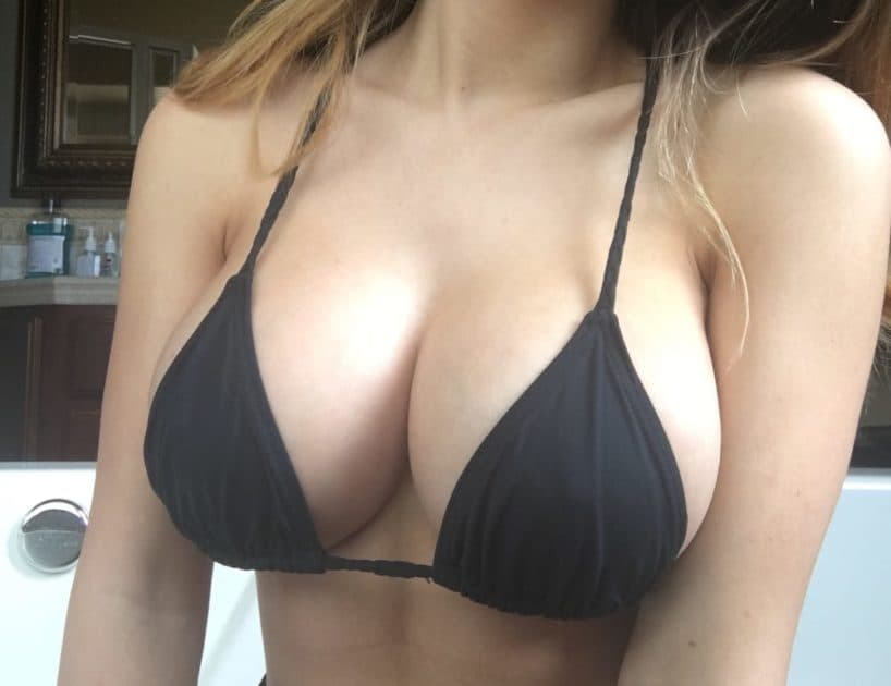 Plastic Surgery Boobs Before And After 1
