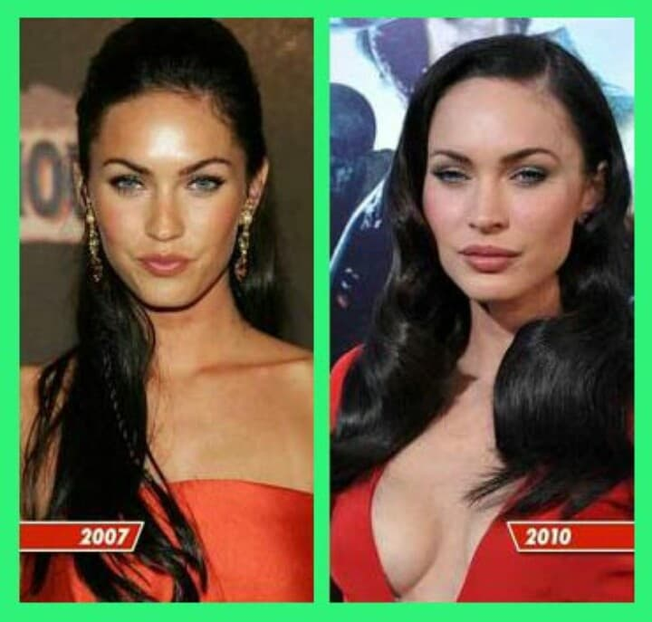 Megan Before And After Plastic Surgery 1