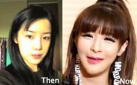 Minzy Before And After Plastic Surgery 1