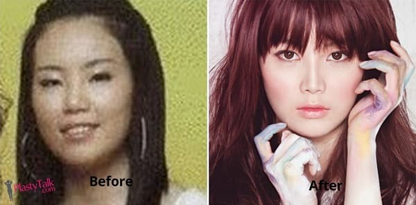 Miryo Plastic Surgery Before And After 1