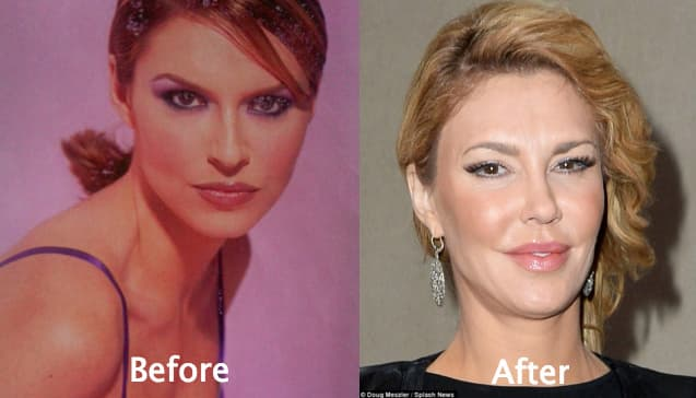 Real Housewives Before Plastic Surgery 1