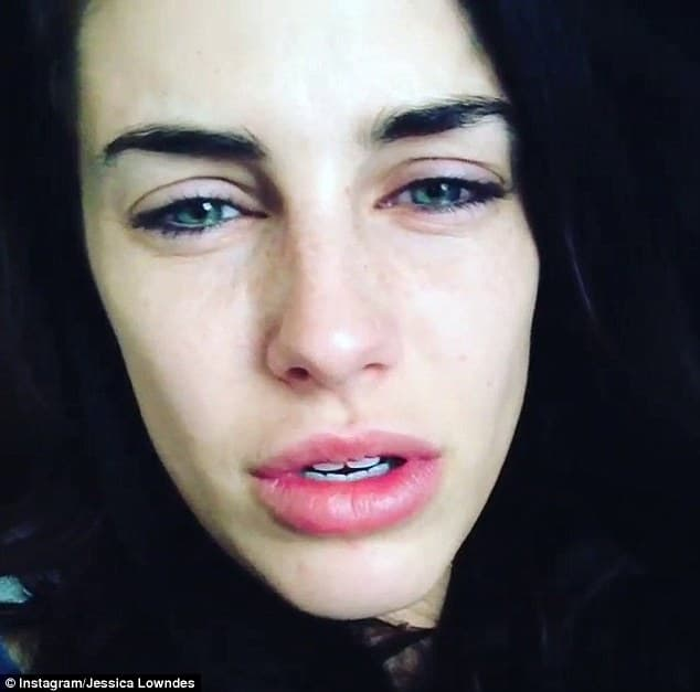 Jessica Lowndes Before Plastic Surgery 1