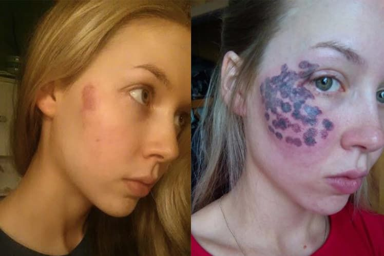 Plastic Surgery Before And After Burns 1