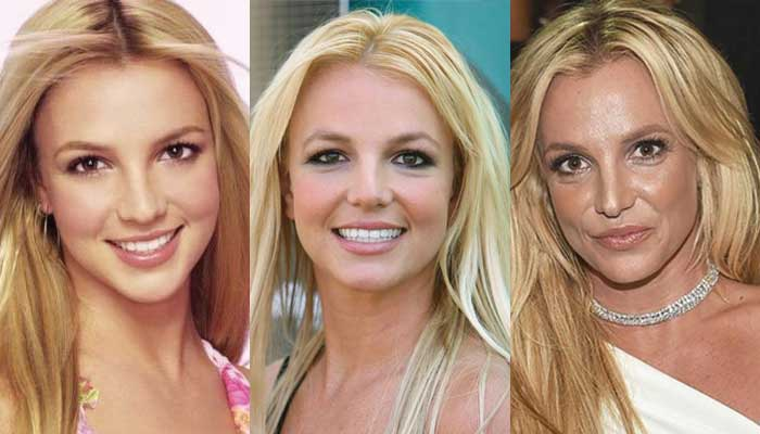 Actresses Before After Plastic Surgery 1