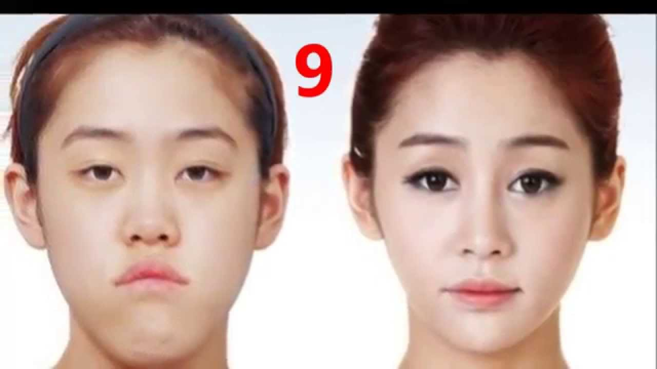 Crazy Before And After Plastic Surgery 1