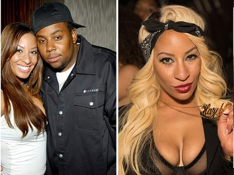 Drita Plastic Surgery Before And After 1