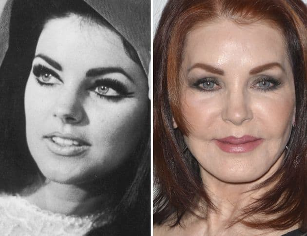 Elvis Before And After Plastic Surgery 1