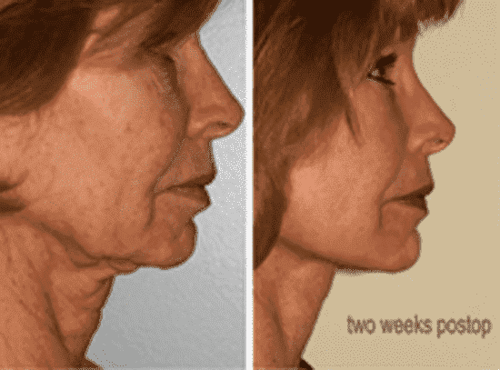 Male Face Plastic Surgery Before After 1