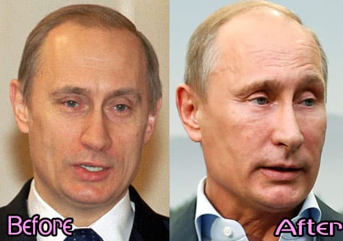 Putin Before And After Plastic Surgery 1