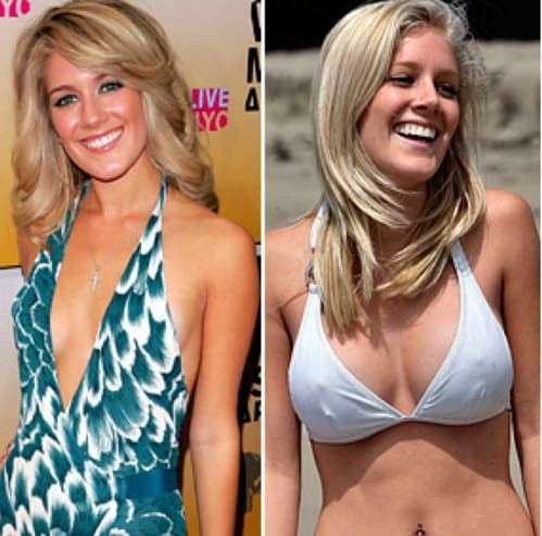 The Hills Heidi Before Plastic Surgery 1