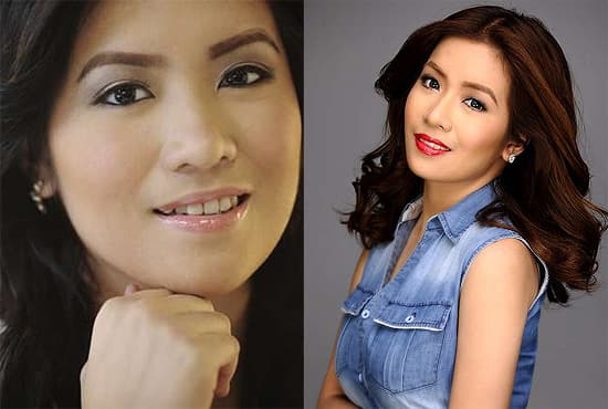 Angeline Quinto Before Plastic Surgery 1