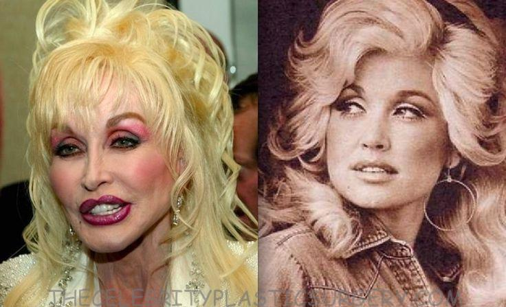 Dolly Before And After Plastic Surgery 1