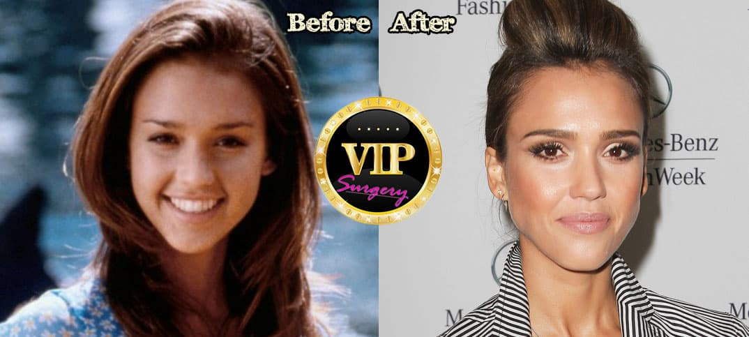 Jessi Plastic Surgery Before And After 1