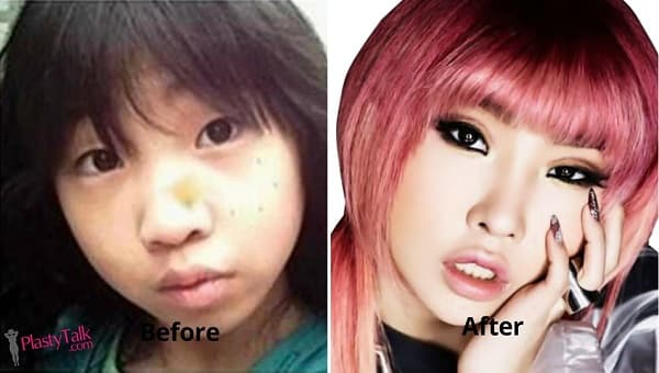 Minzy Plastic Surgery Before And After 1