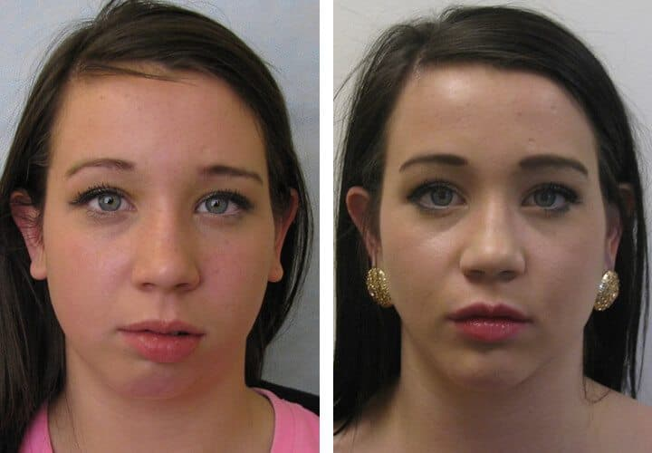 Plastic Surgery Asymmetry Before After 1