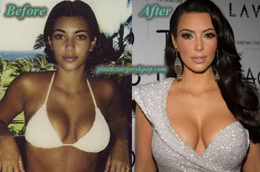 Plastic Surgery Before And After Miley 1