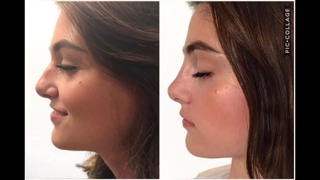 Plastic Surgery Nose Jobs Before After 1