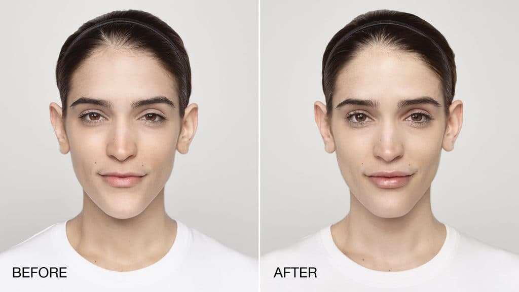 Restylane Touch Before Plastic Surgery 1