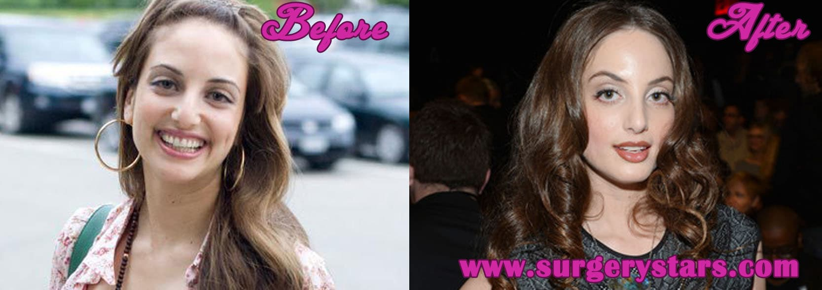 Alexa Ray Joel Plastic Surgery Before After photo - 1