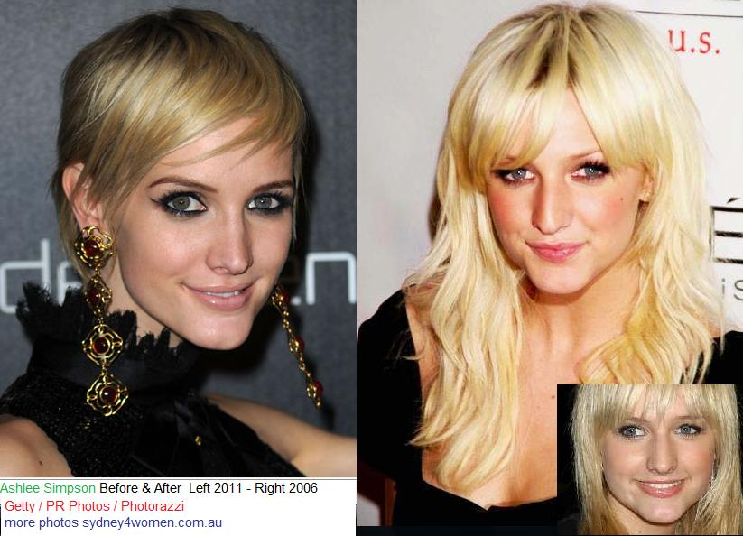Ashlee Simpson Before After Plastic Surgery photo - 1