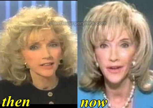 Bea Arthur Before And After Plastic Surgery photo - 1