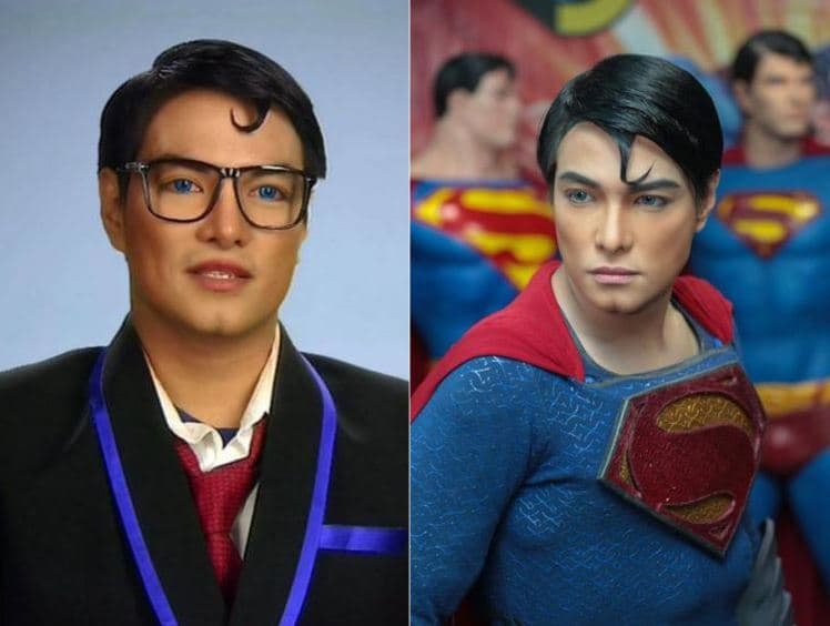Clark Kent Plastic Surgery Before And After photo - 1