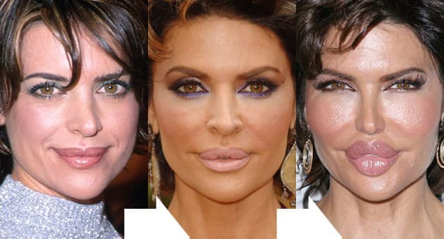 Lisa Rinna Plastic Surgery Before And After photo - 1