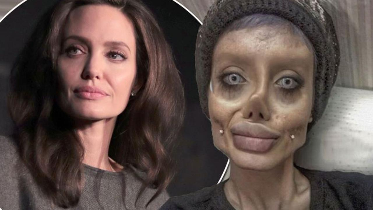Plastic Surgery Angelina Jolie Before After photo - 1