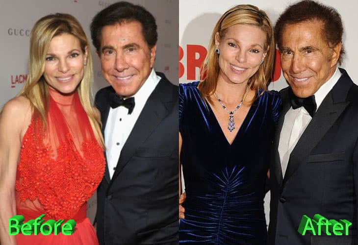Steve Wynn Plastic Surgery Before And After photo - 1