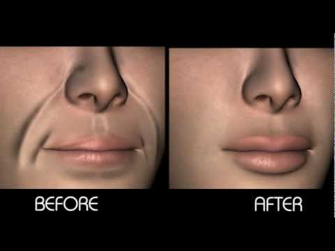 Brazil Plastic Surgery Before And After 1