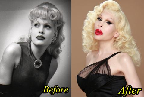 Failed Plastic Surgery Before And After 1