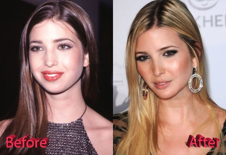 Ivanka Before And After Plastic Surgery 1